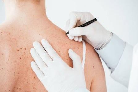 tratamientos dermatología clínica